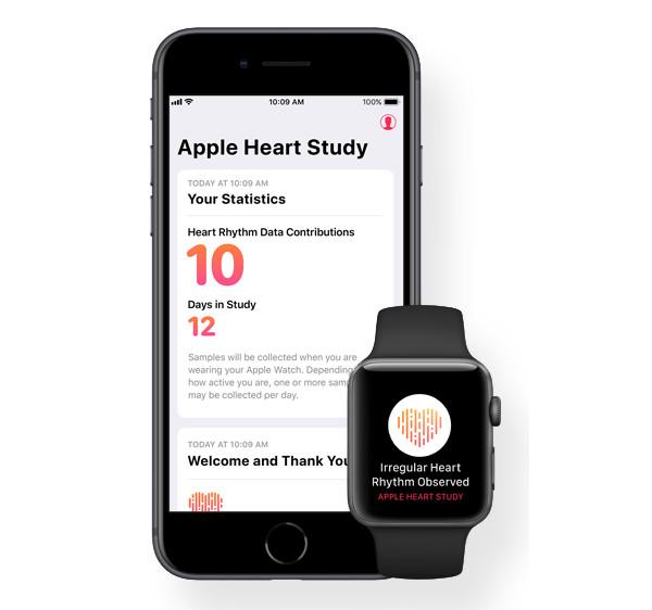 La prochaine Apple Watch pourrait vous sauver la vie